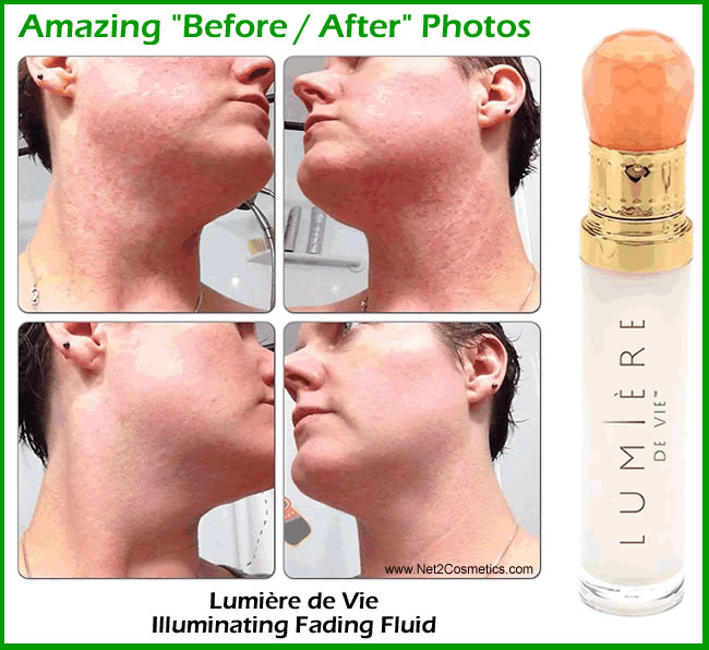 Rosacea Treatment Before After